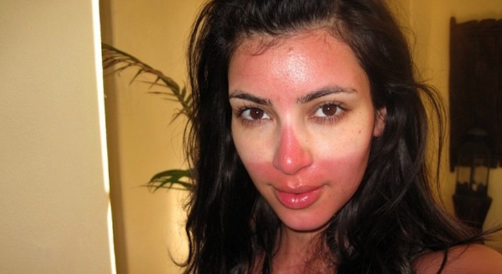 Sunburn Advice - Prevention Tips, How To Treat A Burn Or Cover It Up