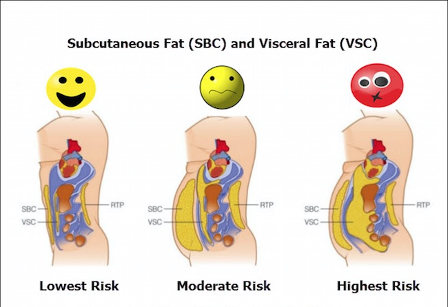 Visceral-Fat-Versus-Subcutaneous-Fat