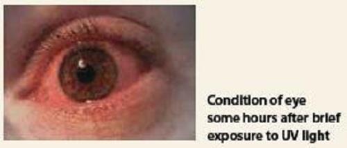 uv eye injury