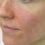 Understanding Dyshidrotic Eczema aka Pompholyx